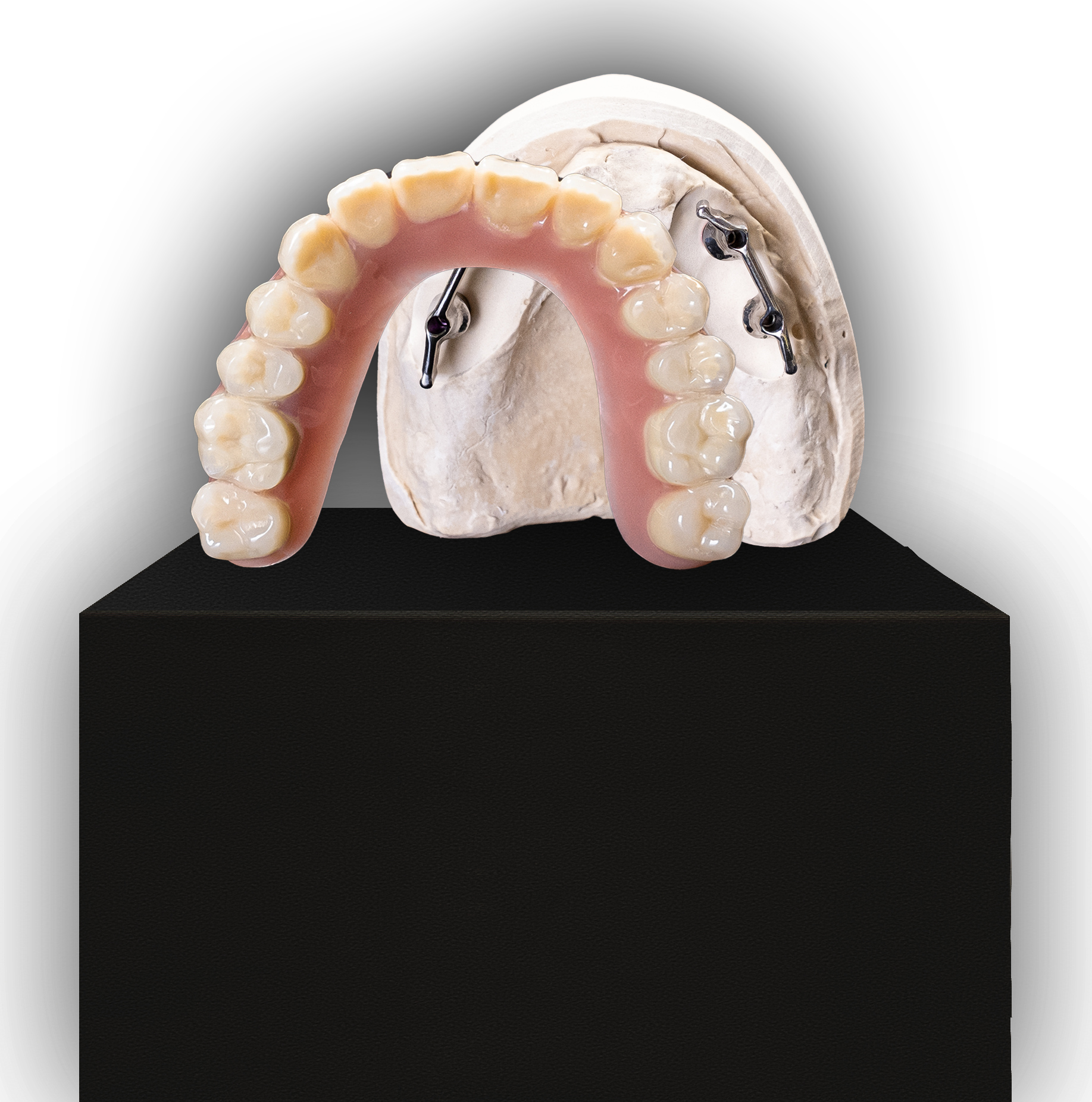 Herausnehmbarer Zahnersatz auf Implantatstegen